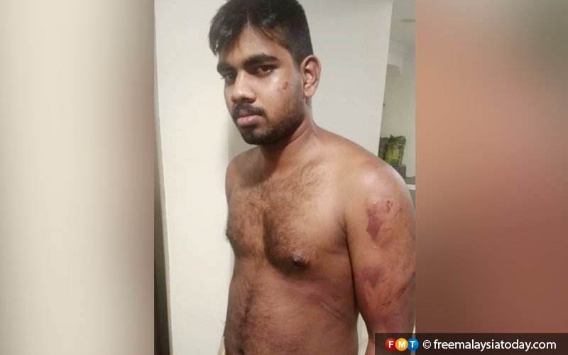 I was beaten, not paid for 3 months, says Indian eatery worker